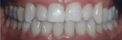 clear braces in Florissant MO