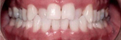 case of straight teeth in Florissant MO