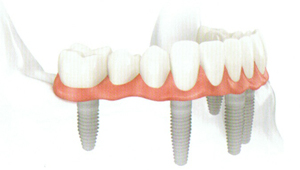 dental implants Florissant dentist in St Louis MO